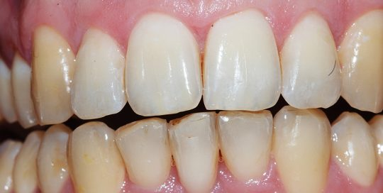 Adult Male Treatment for Crooked Teeth